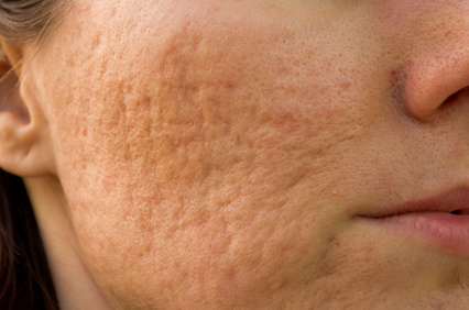 laser resurfacing for acne scars, laser acne scar removal calgary