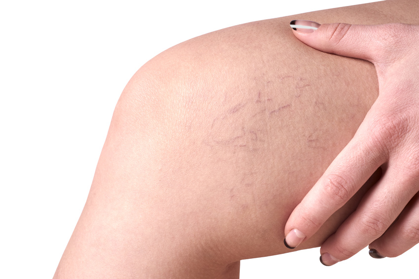 Spider vein treatment, spider vein laser treatment, laser treatment spider vein, spider vein, spider veins, Spider veins treatment, spider veins laser treatment, laser treatment for spider veins