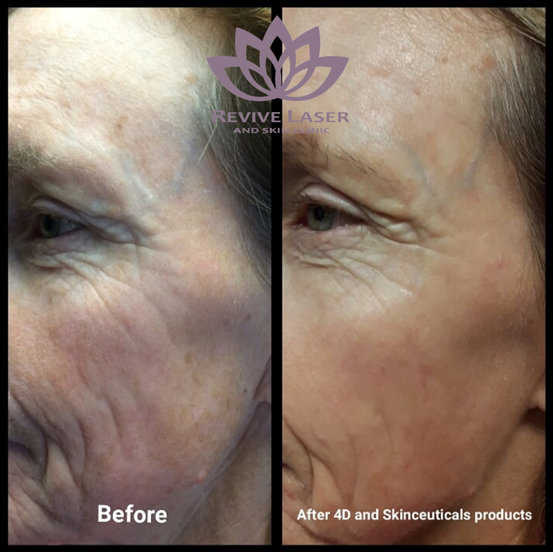Laser Skin Tightening and Skin Rejuvenation Treatments