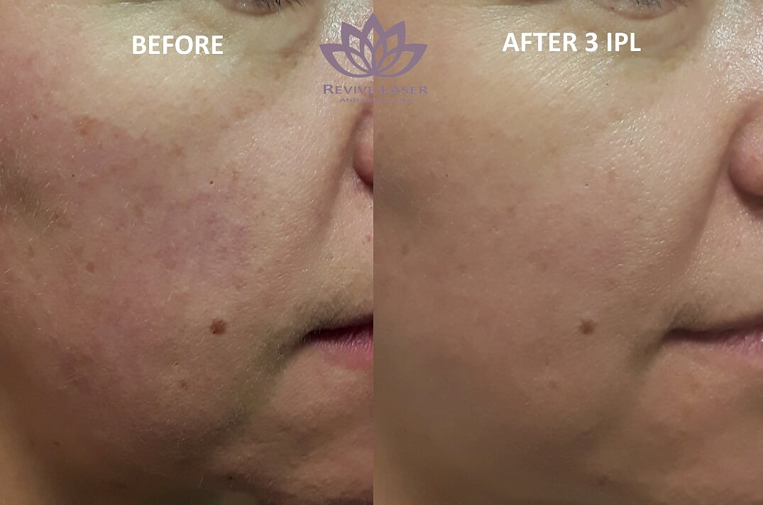 IPL Photofacials - Revive Laser and Skin Clinic